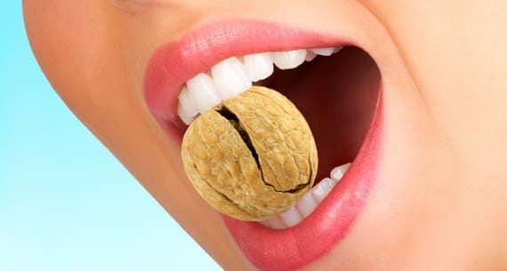 Как решить проблему разрушения зубов?